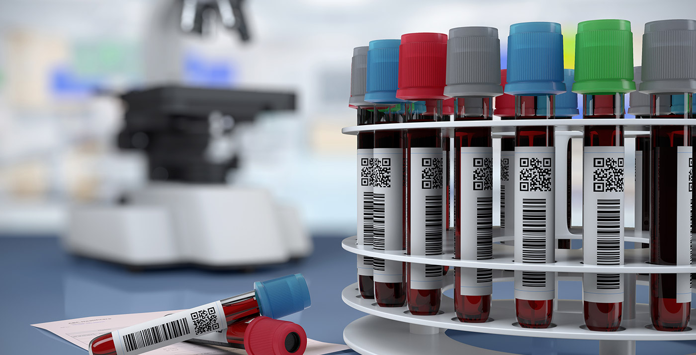 label-markets-healthcare-labels-qr-testing-tubes-dls